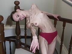 Anorexic ballerina Inna
